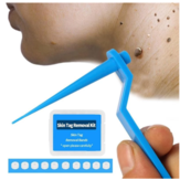 Skin Tag Kill Skin Mole Wart Remover Micro Band Skin Tag Removal Kit  Adult Mole Wart Face Care
