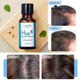 Tinh dầu tăng trưởng tóc