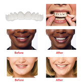Copertine Smile Comfort Impiallacciature Flex Denti superiore + inferiore
