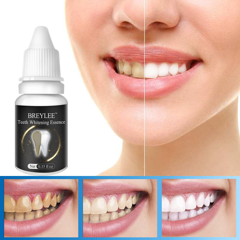 10 Ml Teeth Whitening Cream Remove Black Tooth Yellow Tooth Sale