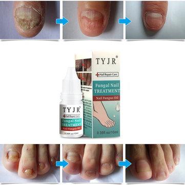 10ML Fungal Nail Treatment Nail Nutrient Solution Repair Nail Moisturizing Nail Care Tool
