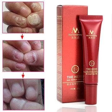 Toenail कवक उपचार क्रीम उंगली पैर की अंगुली का नाखून कवक Onychomycosis हटानेवाला